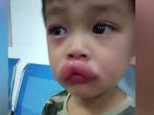 男孩吃葡萄过敏肿成嘟嘟嘴 具体始末曝光让人心疼又好笑