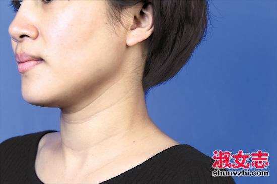 脖子有颈纹怎么办? 女人25岁后7招预防颈纹 脖子有颈纹怎么办