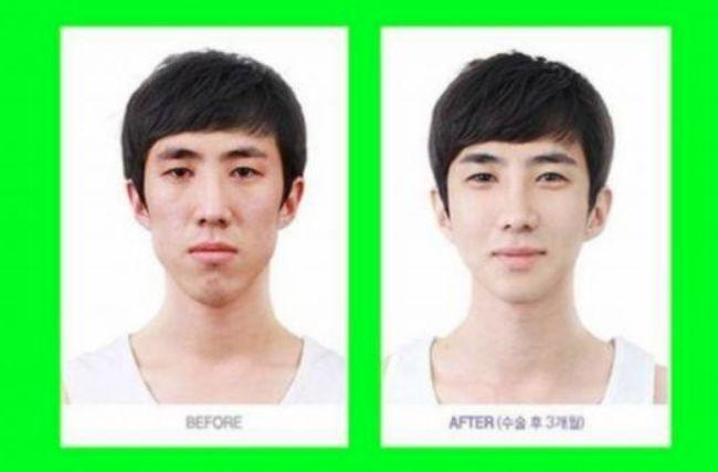 韩国整容术