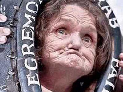 世界上最丑的人   吉尼斯纪录世界上最丑的女人