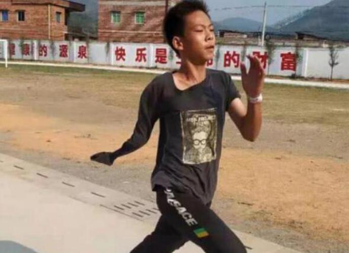 独臂篮球少年参加训练